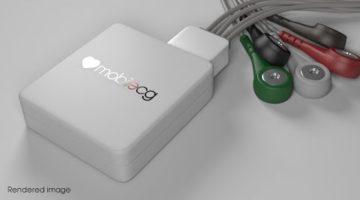 MobilECG is an USB-based open source 12-lead clinical electrocardiograph. It is designed to meet all the relevant medical standards. Smaller than most ECGs and also has superior signal quality.
